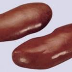 , Despojos de Cerdo